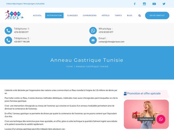 image du site https://www.chirurgia-tours.com/anneau-gastrique-tunisie